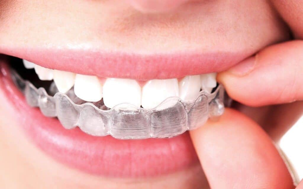 Importance of Orthodontics