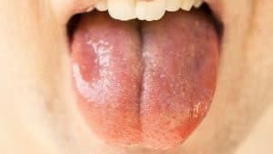 Dry Mouth with tongue wide open