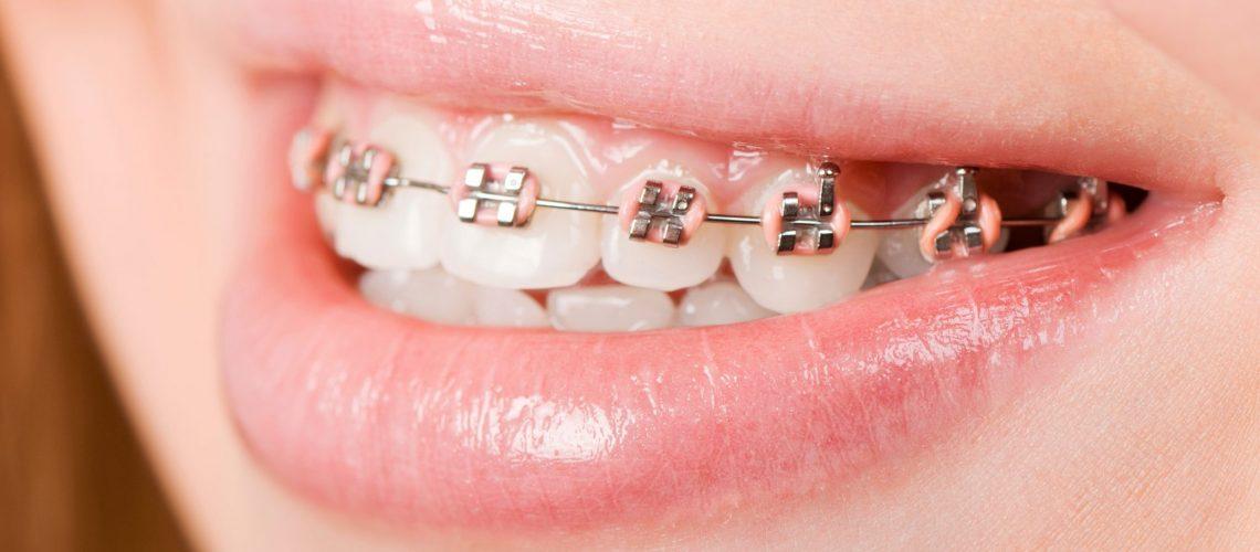 Importance of Orthodontics1